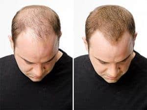 effet avant et après l'application de la follixine