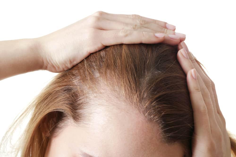 perte de cheveux chez la femme