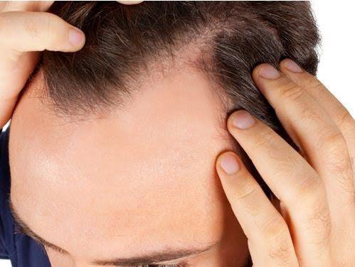 un homme aux cheveux courbés