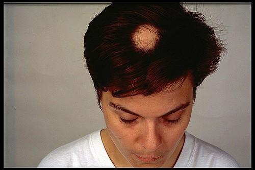 alopécie areata