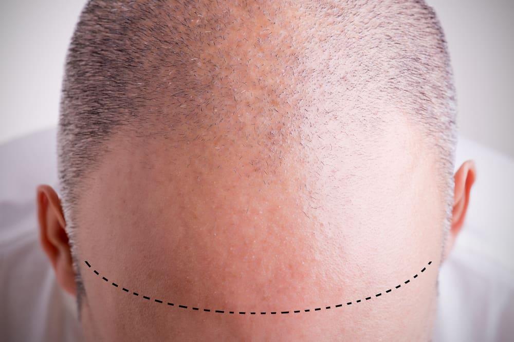 alopécie androgénique masculine