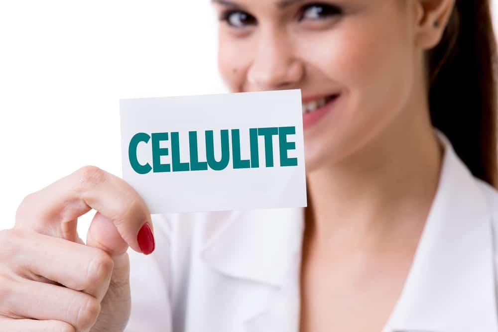 vrouw met cellulitis plaque