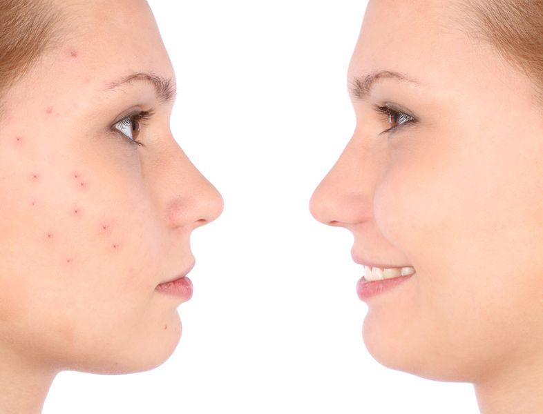 een vrouw met en zonder acne