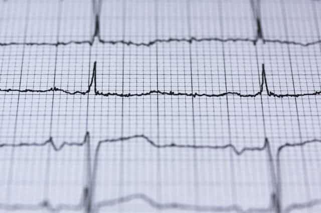electrocardiogram printout