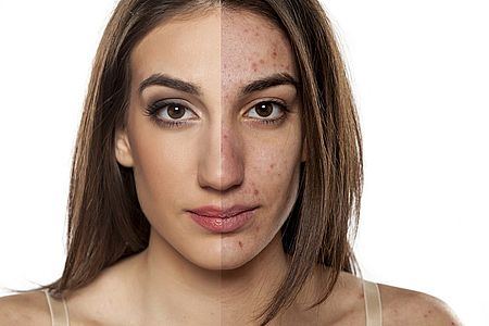 a woman with healthy and acne-prone skin