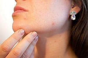 woman with acne-prone skin