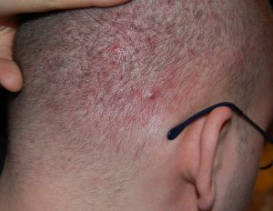 acne of the scalp
